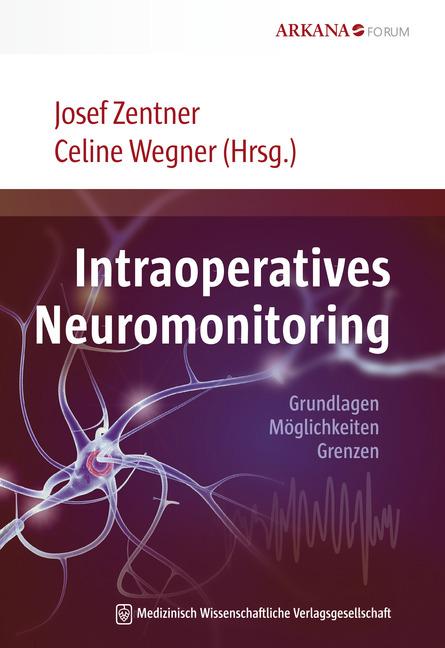 Intraoperatives Neuromonitoring